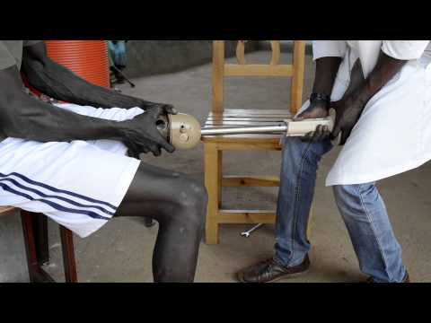 South Sudan: Helping the disabled walk again