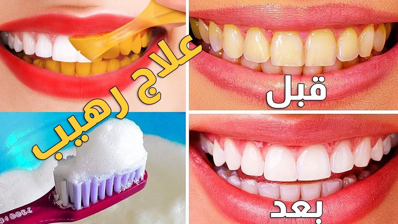 طرق تبييض الاسنان بطريقة طبيعية في المنزل كيف ابيض اسناني بسرعه