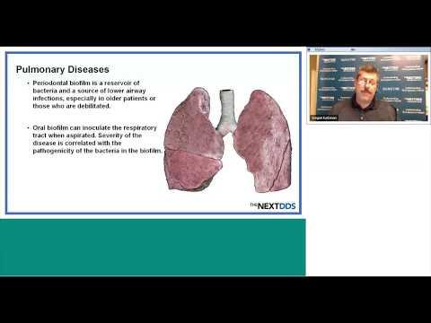 Periodontal Disease & Diabetes