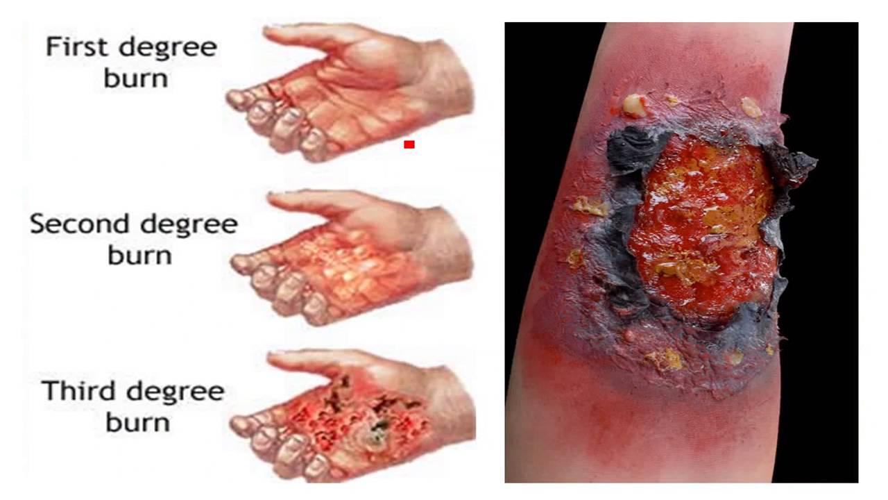 1_22 Healing of cuts, burns, rule of nines - YouTube