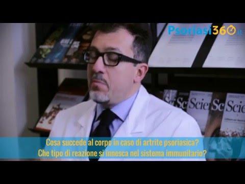 Artrite Psoriasica: come reagisce il sistema immunitario