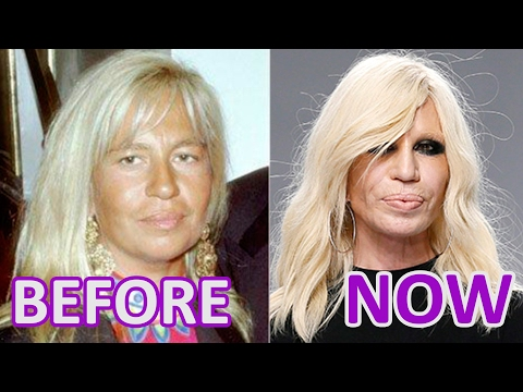 Woman and Time: #Donatella #Versace. Before and After