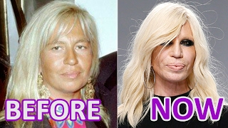 Gambar cover Woman and Time: #Donatella #Versace. Before and After