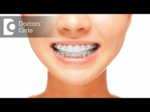 Do braces hurt? - Dr. Rajeev Kumar G