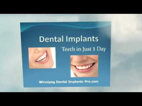 new-dental-implants-procedure-now-in-winnipeg-teeth-in-a-day