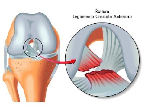 Pré Operatório Joelho LCA Menisco (Ligamento Cruzado Anterior) Clínica Fisioterapia Dr. Robson Sitta
