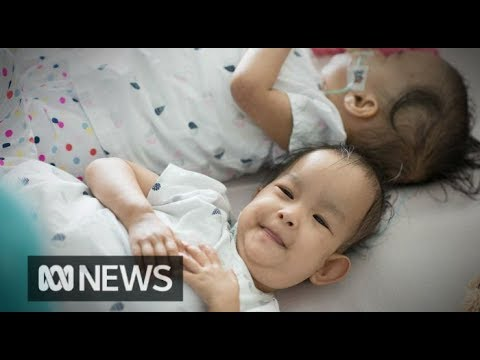 Formerly conjoined twins bum shuffle back together after surgery | ABC News