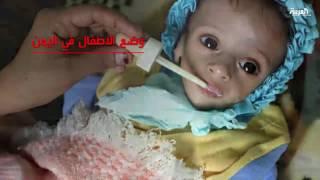 5 ملايين طفل يمني في ظروف صحية مأسوية