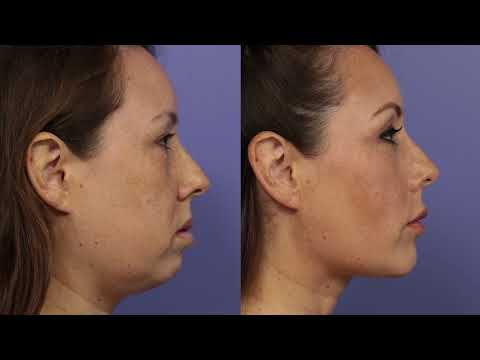 Cheek and Chin Implant in Los Angeles