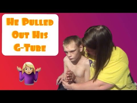 Replacing A G-Tube || Special Needs Child With Cri Du Chat Syndrome  Pulled It Out