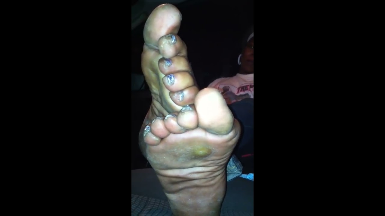 Smelly ebony feet out of uggs - 3 1
