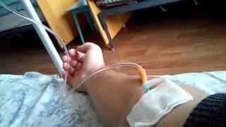 Лечение. Хронический гастродуоденит. Хронический холецистит. День 9