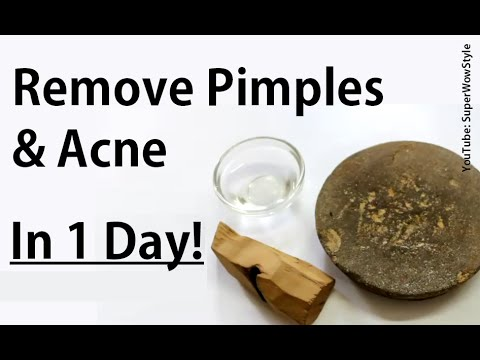 Get Rid Of Pimples Acne In Day How To Remove Pimples Overnight Acne Treatment Superwowst
