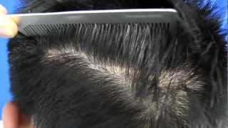 Traction Alopecia Hair Transplant