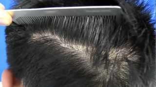 Traction Alopecia Hair Transplant