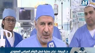 """د.عبدالله الربيعة: يعد فصل التوأم السيامي""""إلين وإيلان"""" الإنجاز الـ 41 للمملكة"""