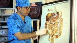 Kolonoskopi Nedir?  Prof. Dr. Orhan Tarçın