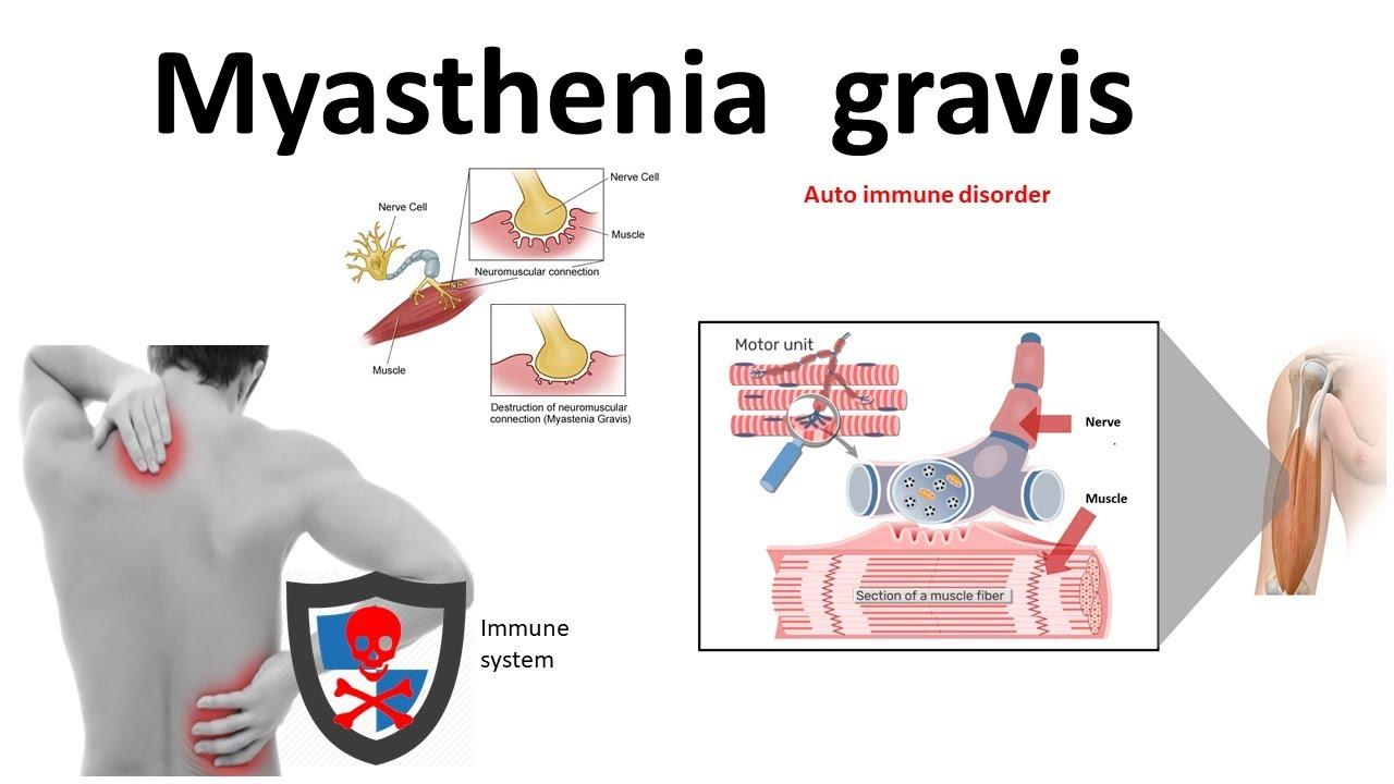 myasthenia gravis és látás)