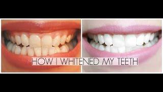 How I've Been Whitening My Teeth at Home | Summer Saldana