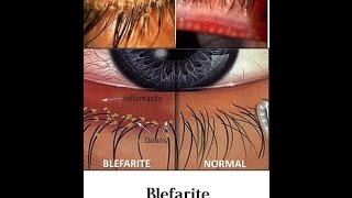 Inchaço nos olhos tratamentos de