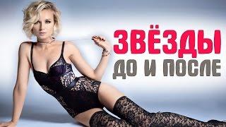 ТОП-10 российских звезд, которые сильно похудели