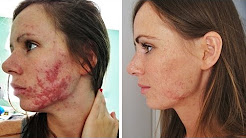 UPDATE How I got rid of my acne! / Accutane (Isotretinoin) Experience
