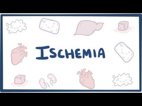 Ischemia - causes, symptoms, diagnosis, treatment & pathology
