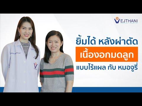 ยิ้มได้ หลังผ่าตัดเนื้องอกในมดลูกแบบไร้แผล กับหมอจูรี่  | โรงพยาบาลเวชธานี