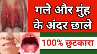 गले में छाले का 100% इलाज | मुंह के छाले का इलाज | Ulcer in throat treatment | Ulcer in mouth,Throat