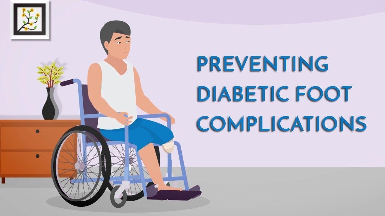 Preventing Diabetic Foot Amputations | Singapore Diabetic Foot Centre | Dr Michael Lai, Podiatry Sg