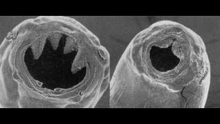 hookworms | الديدان الشصية