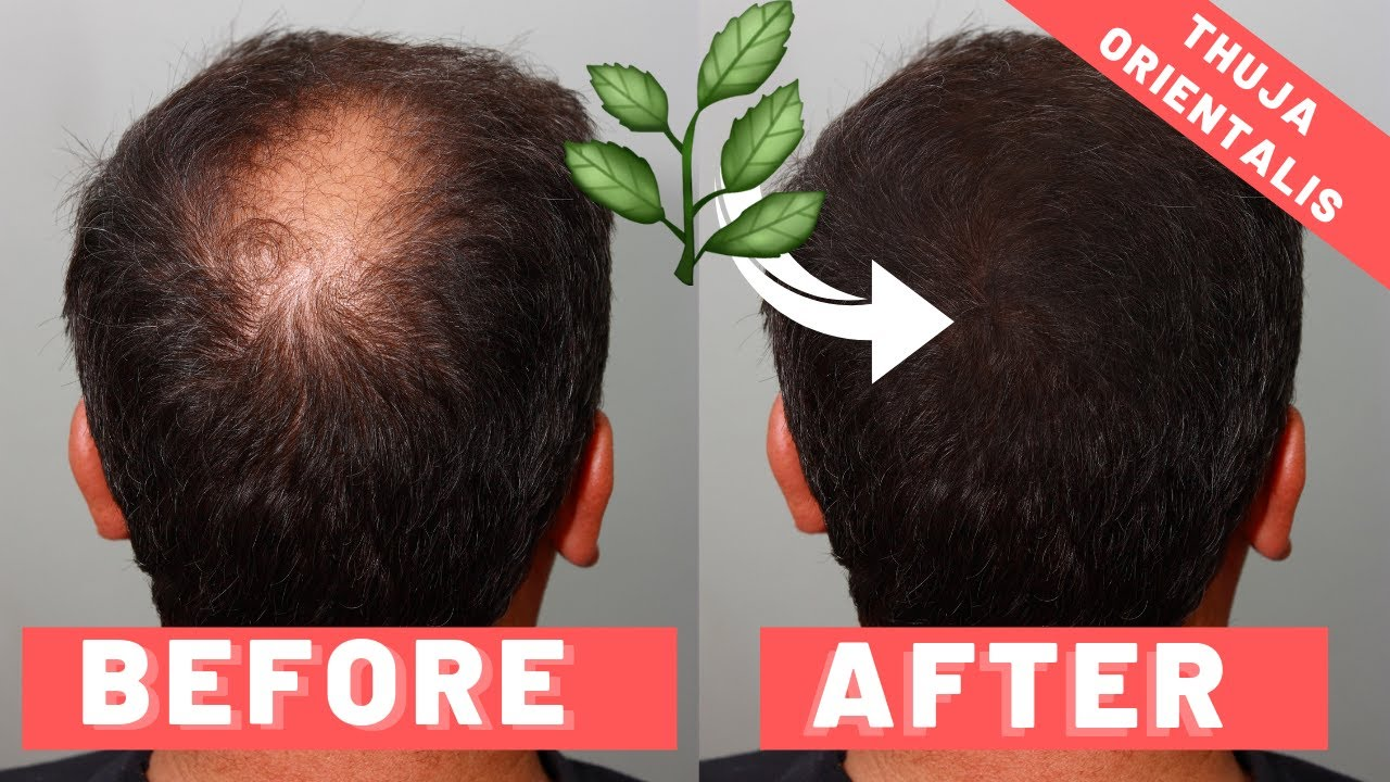 Thuja Orientalis For Hair Loss | How It Works & How To Use It