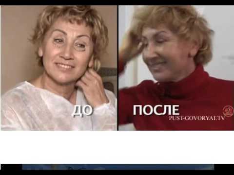 Бывшая жена Шаляпина Лариса Копенкина сделала пластическую операцию  Не упадите!