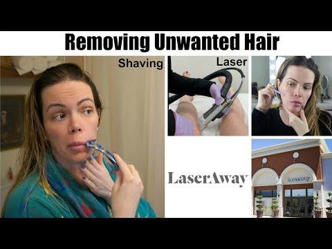 LaserAway Laser Hair Removal | Dermaplaning | Shaving My Face