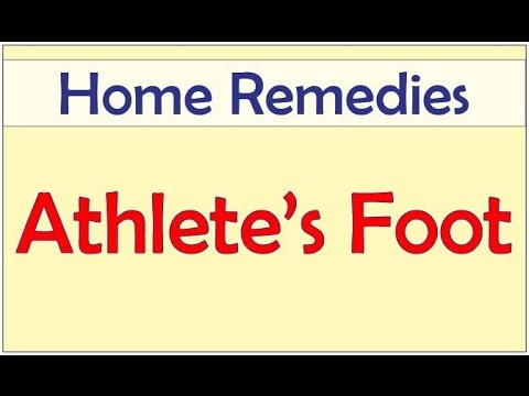 Home Remedies for Athlete's Foot | Athlete's Foot | Natural Home Remedies for Athlete's Foot