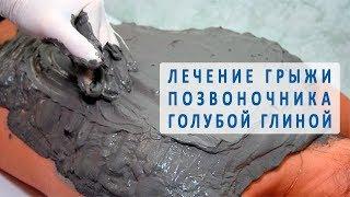 Лечение грыжи позвоночника голубой глиной
