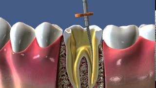 Лечение корня, штифты и коронка - ДокторСтом Краснодар(http://www.doctorstom.ru/o-klinike/nashi-uslugi/lechenie-zubov.html. Лечение корня зуба в Краснодаре, штифтование зубов и коронка на зубы., 2014-11-19T13:48:51.000Z)