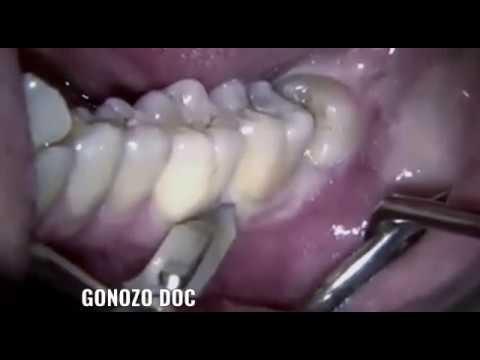 Download Extraction Chirurgicale De Dent De Sagesse.