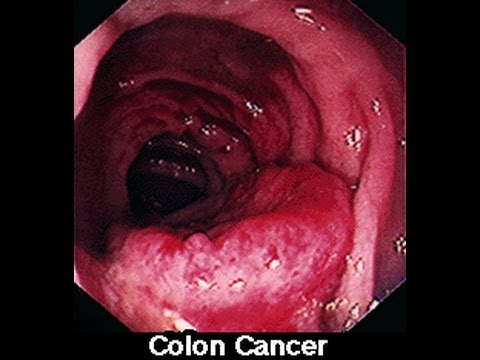 Symptoms of Colon Colorectal Cancer in Men & Women