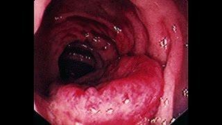 Symptoms of Colon Colorectal Cancer in Men & Women