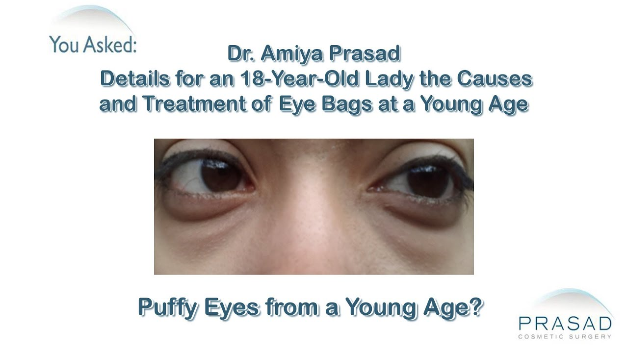 how to stop puffy eyes