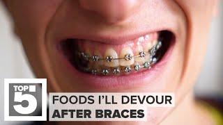 No more braces! Foods I dream of | CNET Top 5