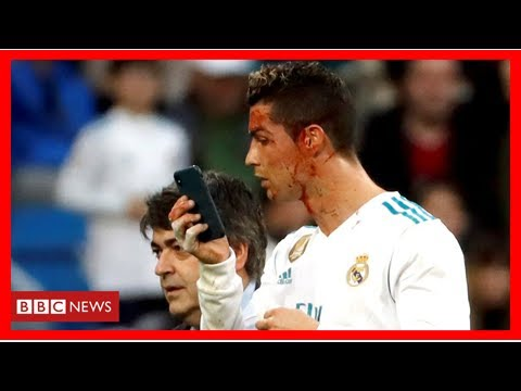 Ronaldo borrows doctor's phone to check facial injury on pitch By Sport LD News