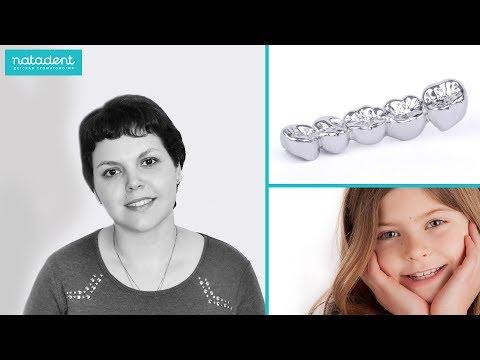141.  Металлические коронки для молочных зубов. Натадент
