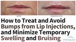 Treating and Avoiding Bumps from Lip Filler Injections, and Minimizing Swelling and Downtime