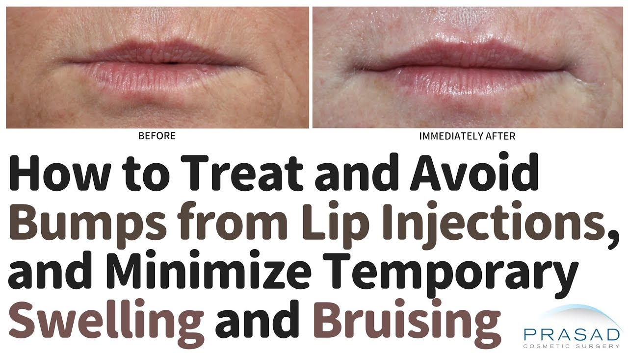 Treating and Avoiding Bumps from Lip Filler Injections, and