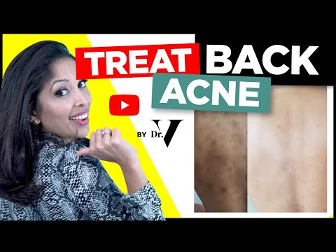 how-to-treat-back-acne-fast-|-doctors-tips-|-skin-of-colour-asian/black-|-treat-backne-|-dr-v