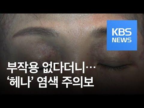 """[뉴스 따라잡기] """"염색 후 얼굴 까맣게 됐어요""""…'헤나' 염색 주의보 / KBS뉴스(News)"""