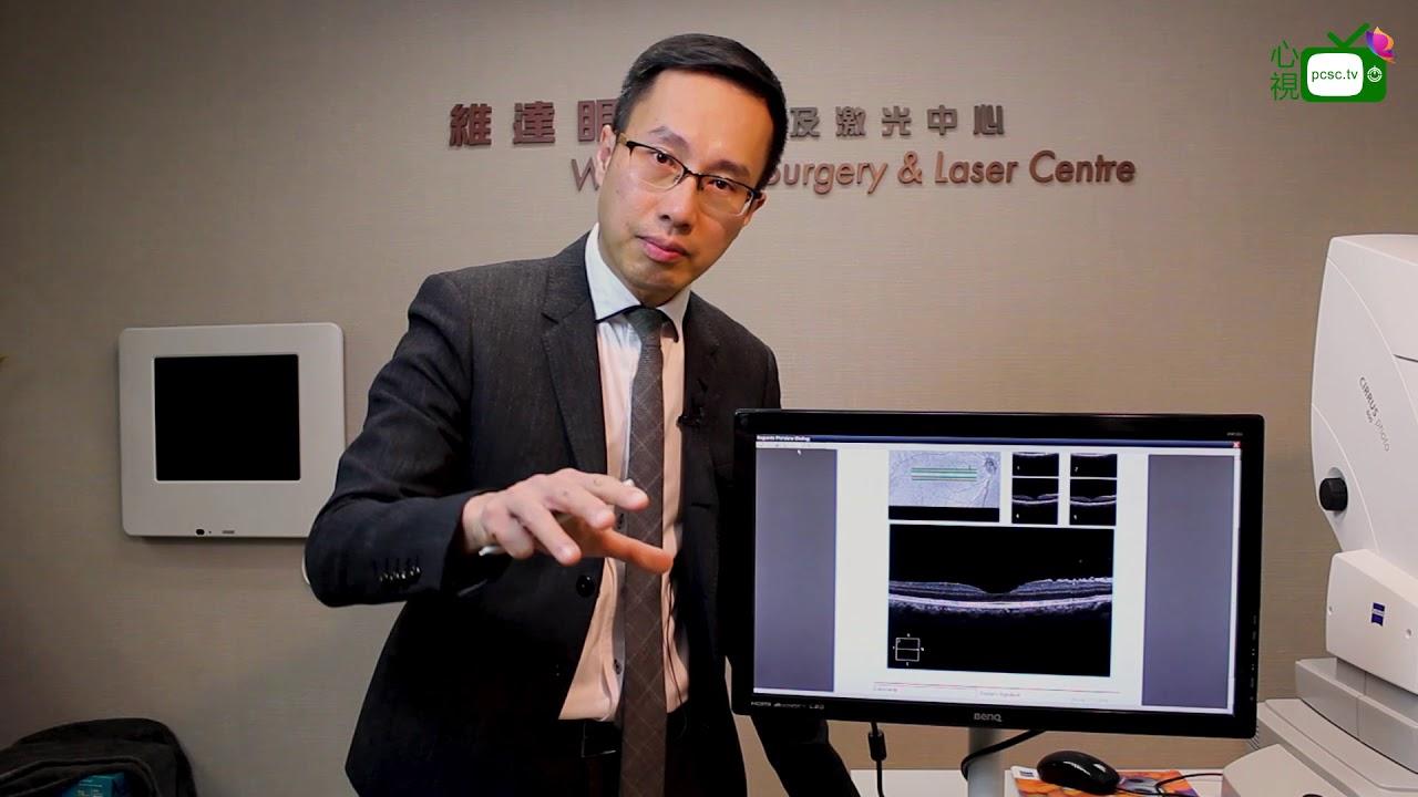 【心視台】香港眼科專科醫生 鄧維達醫生- 甚麼是黃斑前膜病變-什樣治療方法