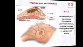 Рак молочной железы операция: лампэктомия, секторальная резекция, радикальная мастэктомия(http://symptominfo.ru/article/doc/30/ и http://symptominfo.ru/theme/show/33/ Здесь Вы можете познакомиться с современной информацией по..., 2015-07-23T22:08:19.000Z)